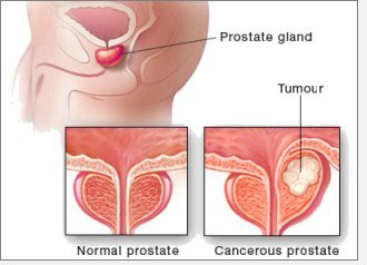 Prostate Cancer Frequently Asked Questions